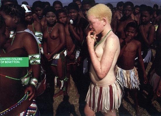 20 Изобюражение африканской женщины-альбиноса, на которую неодобрительно смотрят ее соплеменники
